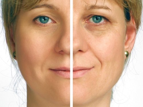 Anti Aging Tips For Thailand Expats