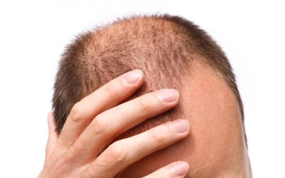 Could My Hair Loss be Down to Andropause?