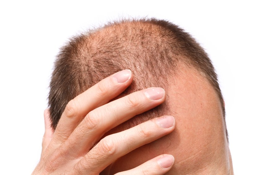 Hair loss and Andropause Could My Hair Loss be Down to Andropause?